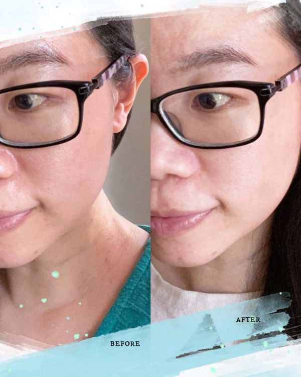 snp prep cicaronic skin care product before after